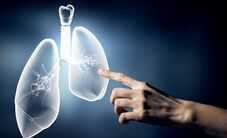 facts-about-mesothelioma